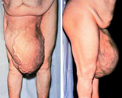 Can sex cause hiatal hernia jpg 1500x1210