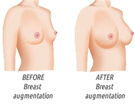 recovery time after breast surgery png 247x190