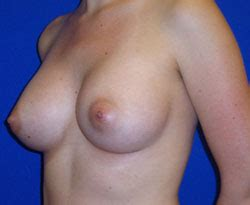 moderate ptosis with breast augmentation photos jpg 250x205